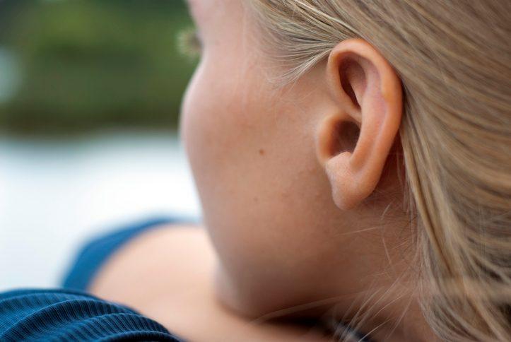 orecchie a sventola nei bambini