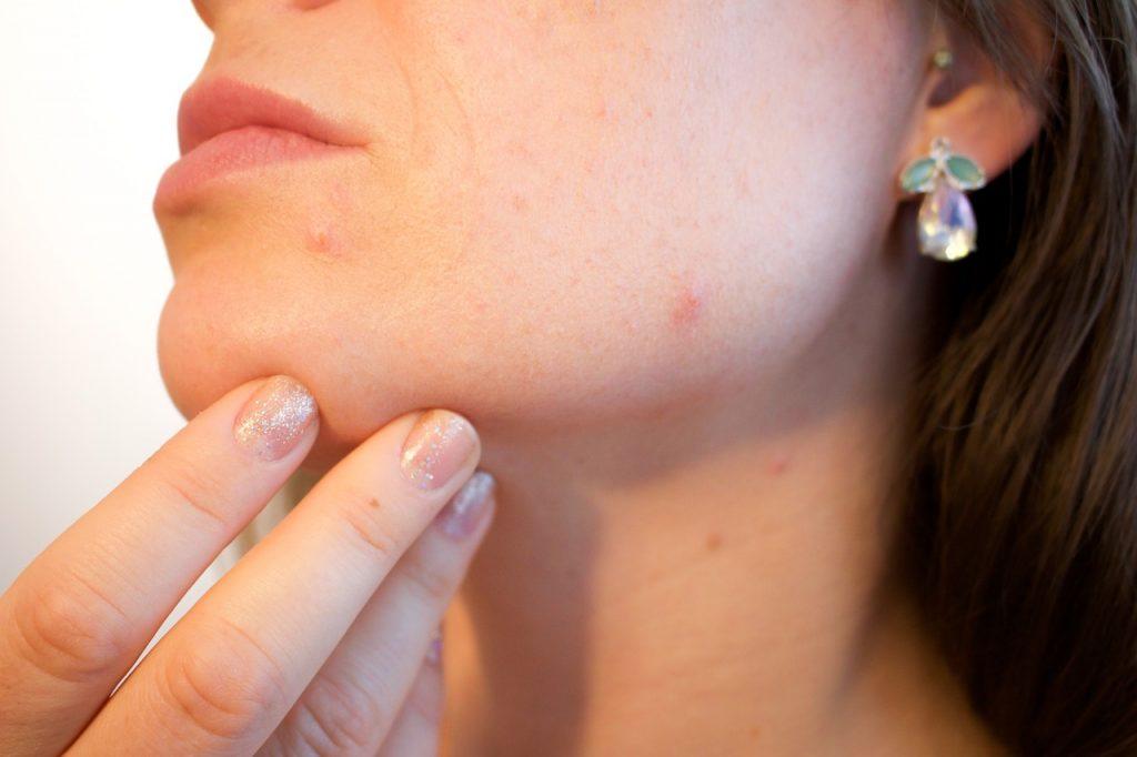 acne come curarla