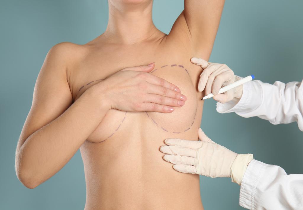 asimetria mammaria rimedi